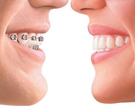 Ortodonzia apparecchio denti fisso mobile trasparente Ariano Irpino Avellino D'Amato